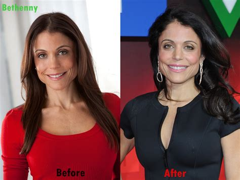 bethenny frankel plastic surgery before and after bethenny frankel plastic surgery face before and after