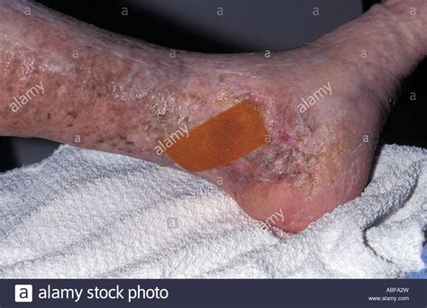 Varicose Ulcer Images
