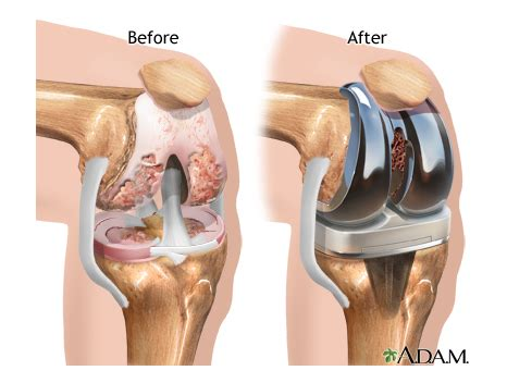 total knee replacement diagram total knee replacement thinglink