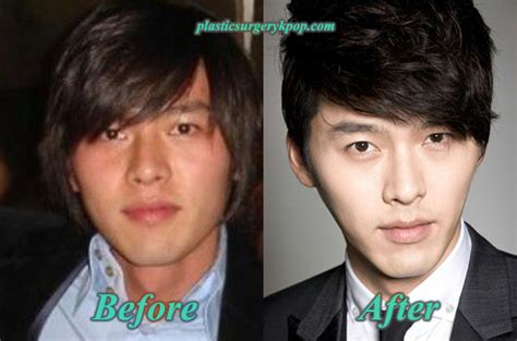 lee seung gi predebut hyun bin plastic surgery before and after pictures