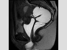 Defecography - Charter Radiology Radiology Billing
