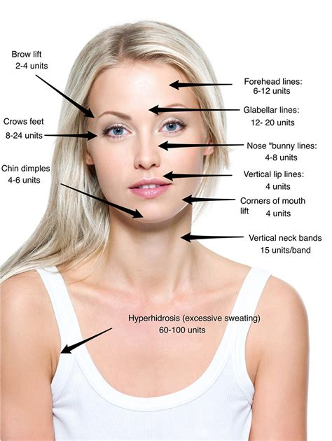 botox injections injectable services bellvs