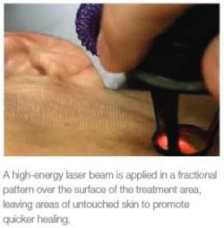 tattoo removal annapolis laser skin treatment annapolis md wrinkle cure severna park