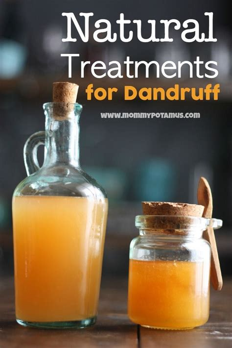 17 best ideas about remedies for dandruff on