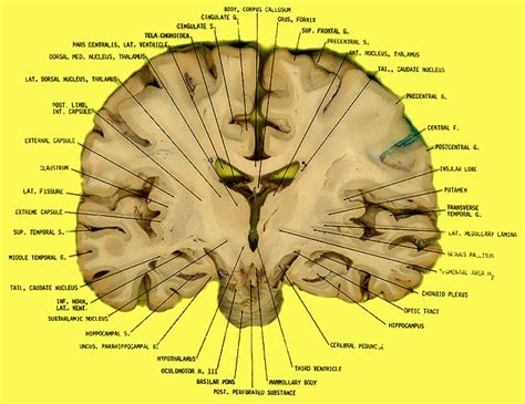 brain coronal section coronal section brain quotes
