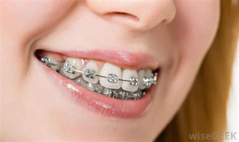 braces teeth what are the different types of dental braces with pictures