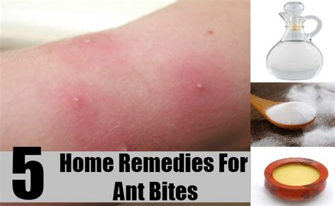 5 best home remedies for ant bites treatments