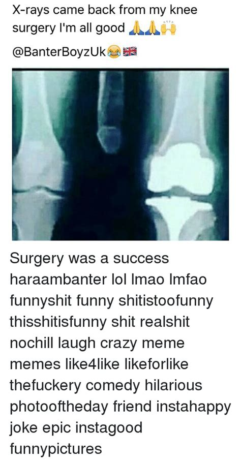 Knee Surgery Meme - knee surgery meme 28 images funny surgery jokes kappit