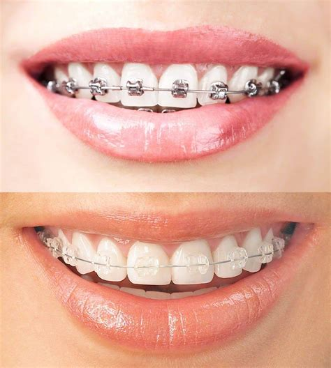 Dijamin Clear St Smile Metal Clear Braces Rodney Dental