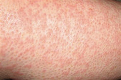 heat rash heat rash causes symptoms treatment heat rash
