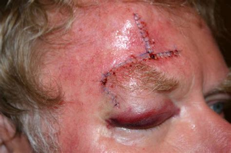 eye injury fights and falls are major causes of eye injury in the us news today