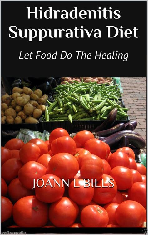 Will Detoxing Help With Hidradenitis by 12 Best A New Look For Hidradenitis Suppurativa Diet