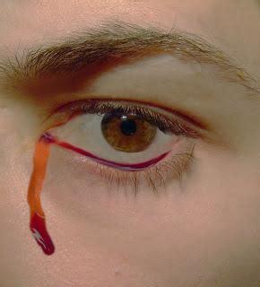 sangue rosso dal sedere emozioni nella nuvola serie 3 v episodio paperblog