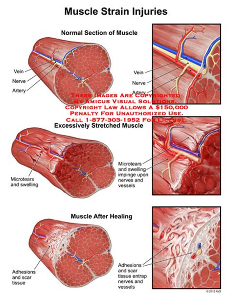 creatine ulcer strain injuries knot knot who s there