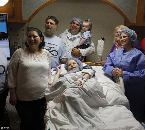 getting a family member sectioned incredibly rare conjoined twins born in atlanta they
