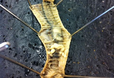 Earthworm Dissection Biology 1 Earthworm Dissection
