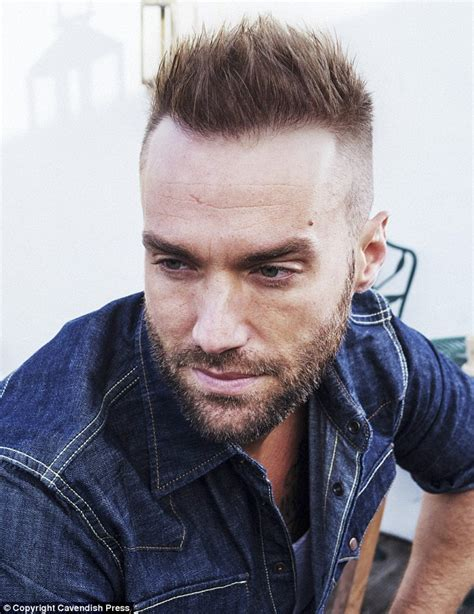 best haircuts fir transplanted hair calum best undergoes a second 163 6 000 hair transplant in