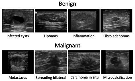 Benign Breast Lump Ultrasound Images