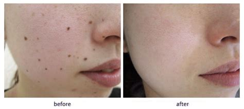 mole removal laser or surgery treatment the clinic