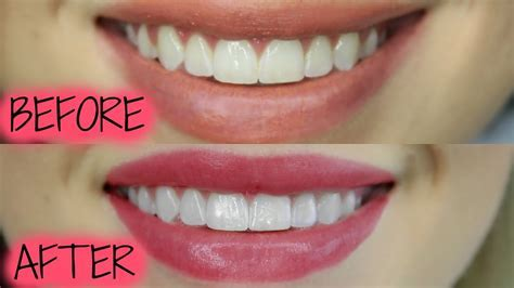 The BEST Teeth Whitening Product EVER!   YouTube