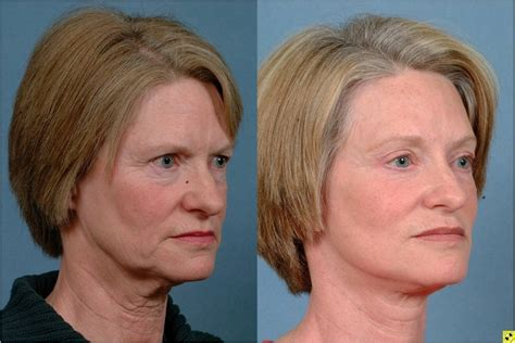 lower face and neck lift minimally invasive injectable fillers johns hopkins