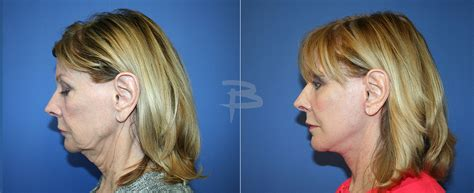 lower face and neck lift facelift