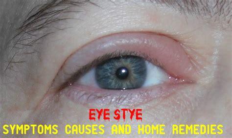 Symptoms Causes and Home Remedies for Eye Stye   Stylish Walks