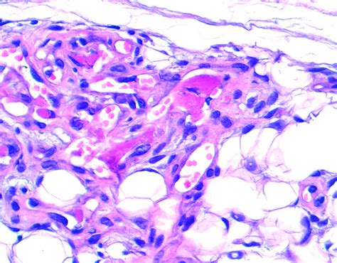 Angiolipoma Path Outlines by Pathology Outlines Angiolipoma