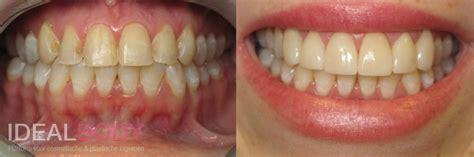 Tanden Polijsten Voor Bleken by Facings Rechte En Witte Tanden Kosten Ervaringen En