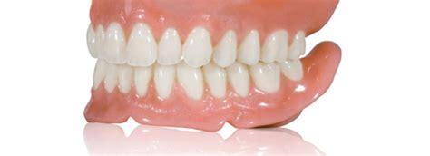 tipi di protesi dentarie mobili studio odontoiatrico dell olmo cassino protesi dentarie
