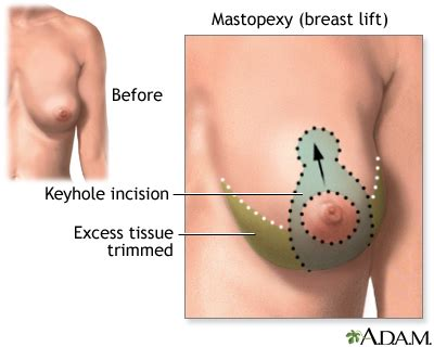 Breast Lift breast lift mastopexy series penn state hershey center