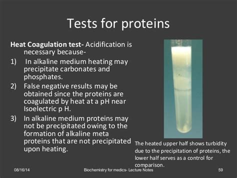 protein lab test urinalysis methods observations and clinical significance
