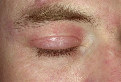 Rash Around Eyes Causes Treatment And Pictures