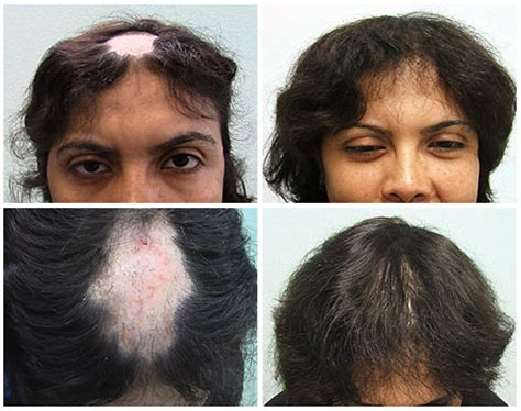 guide to hair loss conditions diagnose yourself short hairstyles for lupus image gallery lupus hair loss