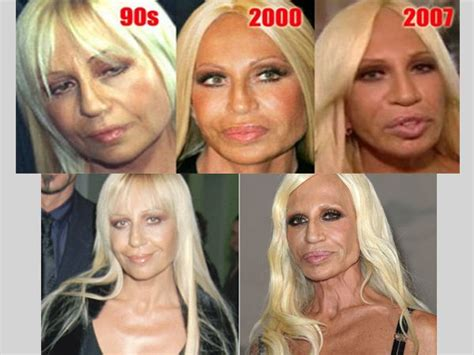 Donatella Versace Tells Clinton To Take by If Successful Plastic Surgery Can Make Anyone Look Better