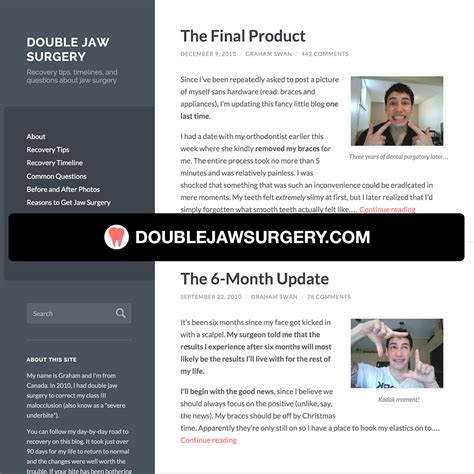 jaw surgery recovery timeline double jaw surgery double jaw surgery recovery tips timelines and