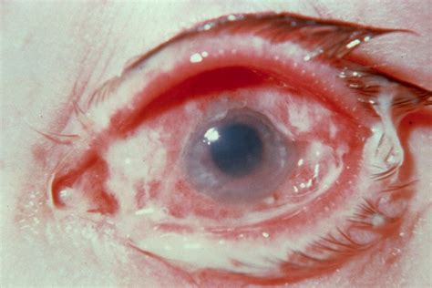 Can U Get Pink Eye From On A Pillow by What To About Apollo The Infection Health