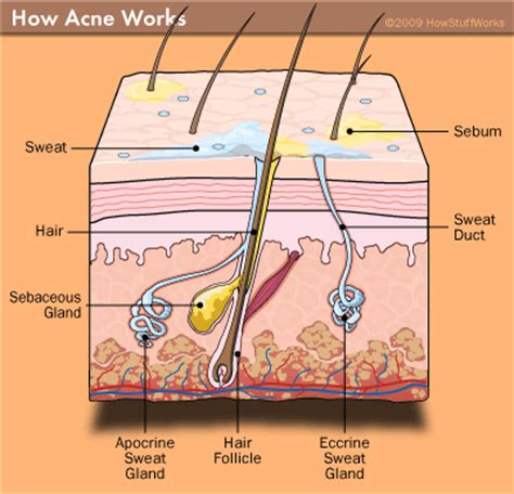 a protein that thickens and waterproofs the skin is infectious diseases affecting the skin and vocabulary