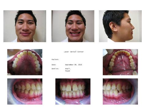 Invisalign Case Study Closure Of Diastema Dentalcompare Com Invisalign Photo Template