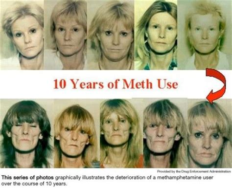 Meth Detox While by Time Lapse Of Meth Addiction