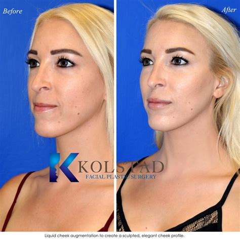 Augmentation Fill by Juvederm Restylane Voluma Vollure More