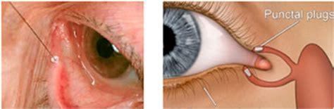 test di schirmer occhio secco cause e cure la sindrome di sj 246 gren test