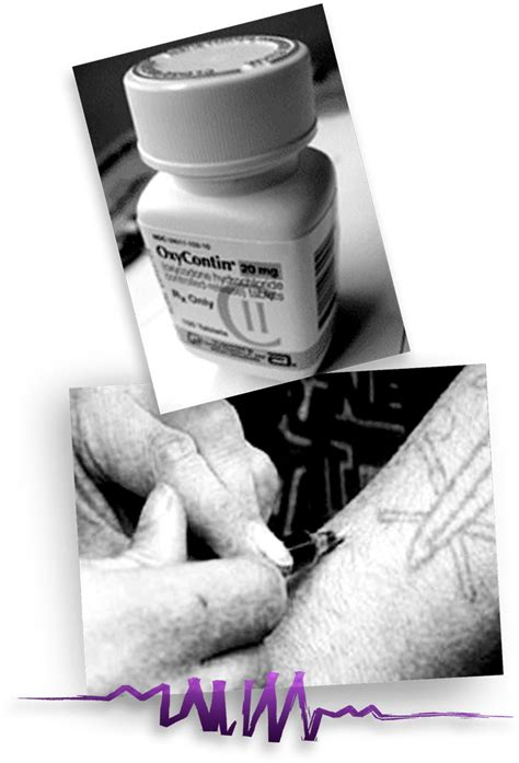 Side Effects Of Detoxing From Oxycontin by Oxycontin Addiction Abuse Side Effects Withdrawal