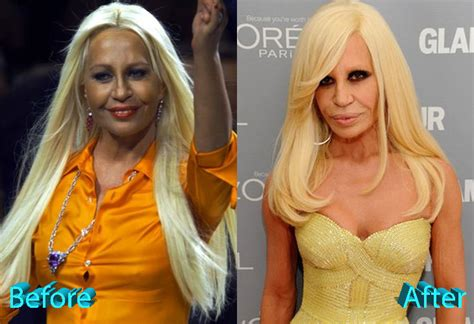 How To Smell Like Donatella Versace by Donatella Versace Plastic Surgery Not Fashionable At All