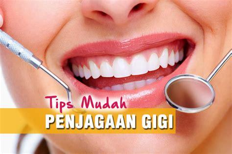 Pemutihan Gigi Di Klinik Kerajaan penjagaan gigi magazine