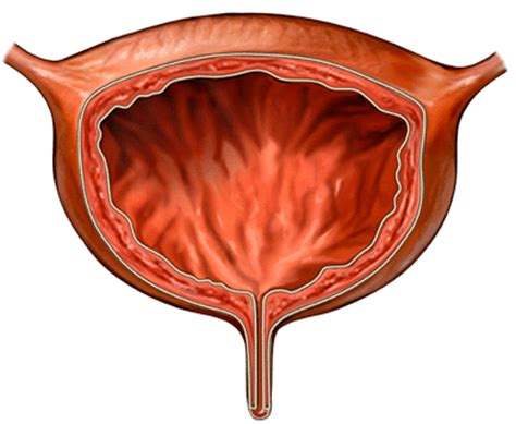 bladder infection bladder infection