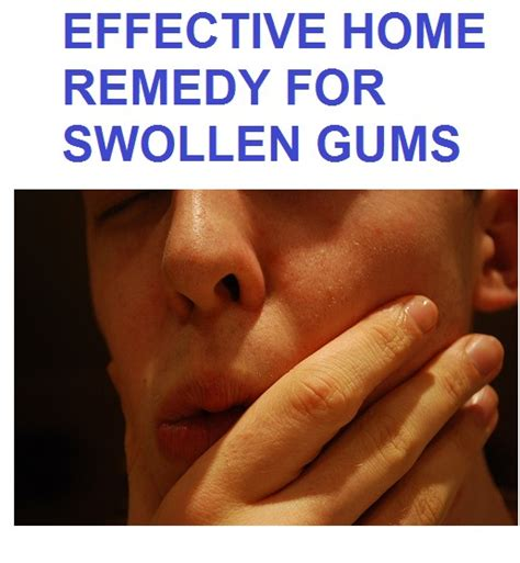 home remedy swollen gums home remedies swollen gum 10