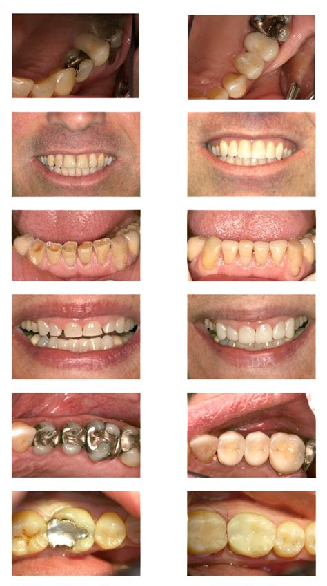latrobe smile makeover latrobe dentist serving