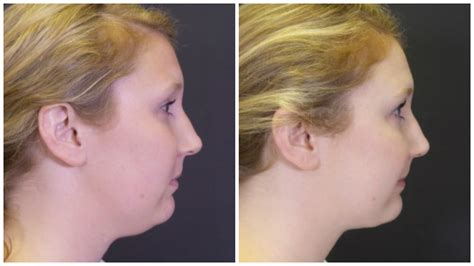 double chin tuck sew after before facial liposuction adult archive