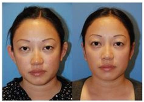 facial masculinization surgery see our reviews testimonials for dr philip young